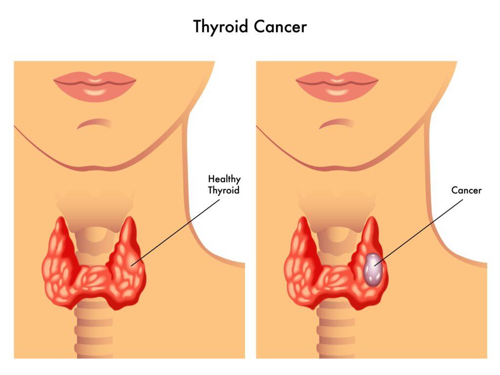 Illustration of thyroid gland and thyroid cancer